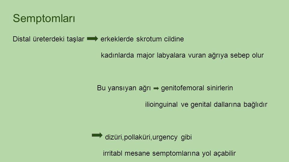 Semptomları Distal üreterdeki taşlar erkeklerde skrotum cildine