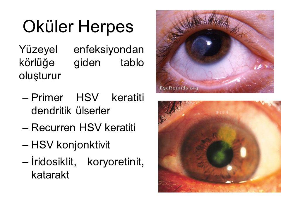 Oküler Herpes Yüzeyel enfeksiyondan körlüğe giden tablo oluşturur