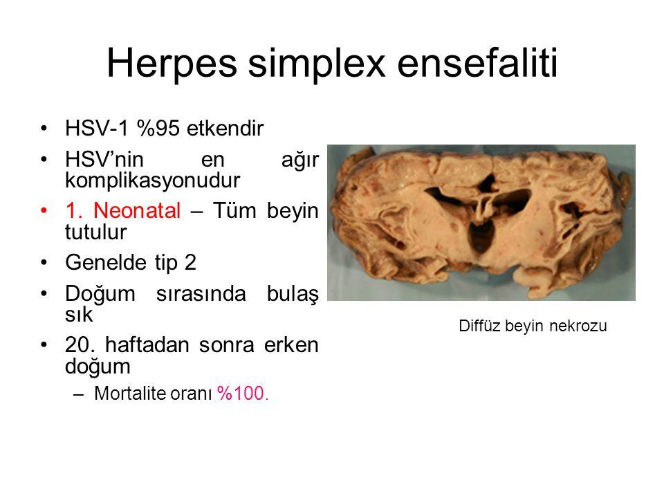 Herpes simplex ensefaliti