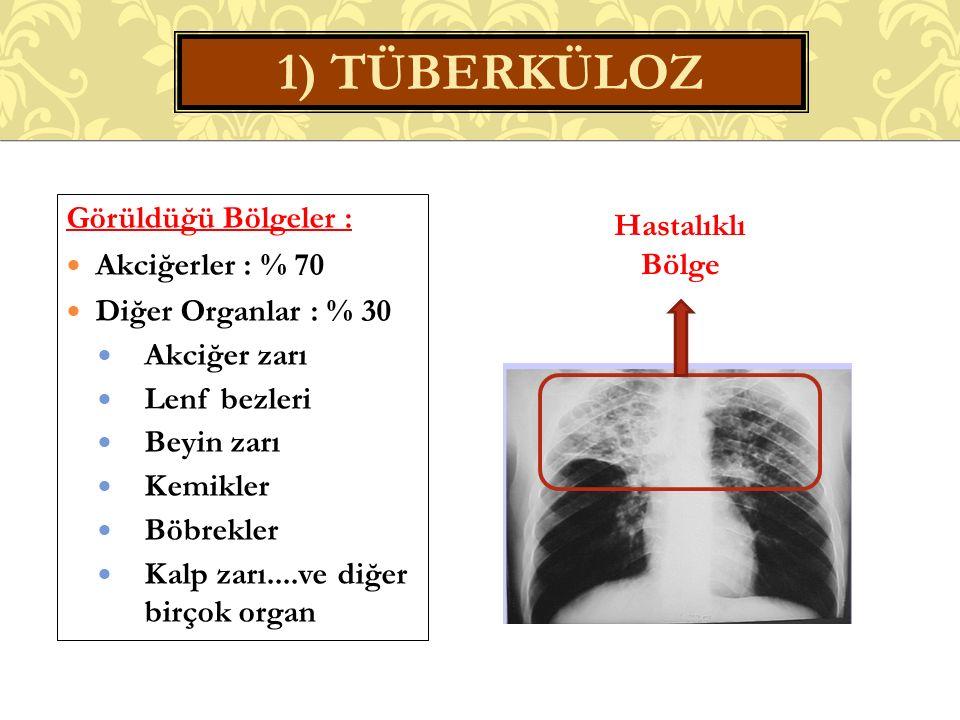 1) TÜBERKÜLOZ Görüldüğü Bölgeler : Hastalıklı Akciğerler : % 70 Bölge