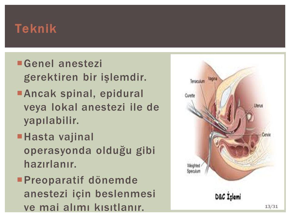 Teknik Genel anestezi gerektiren bir işlemdir.