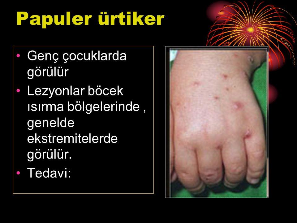 Papuler ürtiker Genç çocuklarda görülür