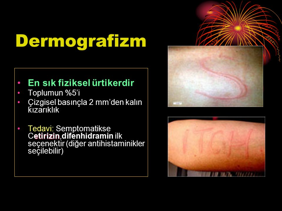 Dermografizm En sık fiziksel ürtikerdir Toplumun %5'i