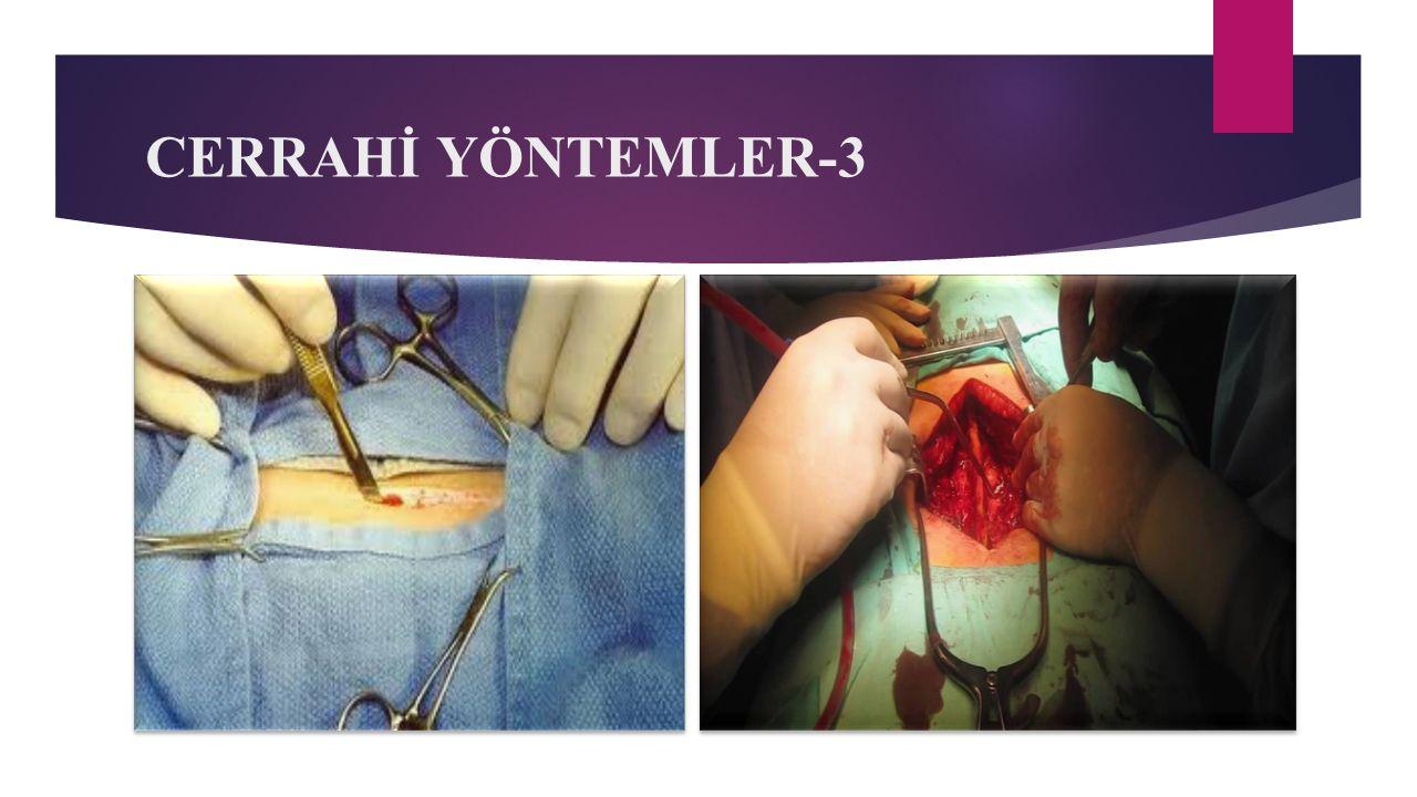 CERRAHİ YÖNTEMLER-3