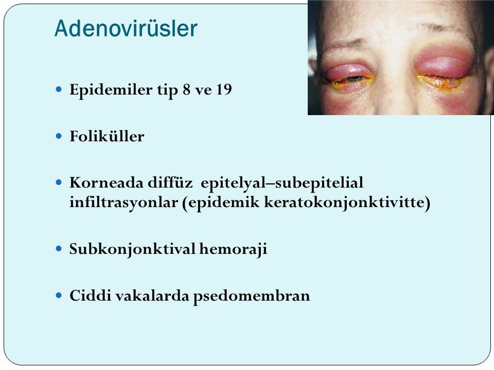 Adenovirüsler Epidemiler tip 8 ve 19 Foliküller