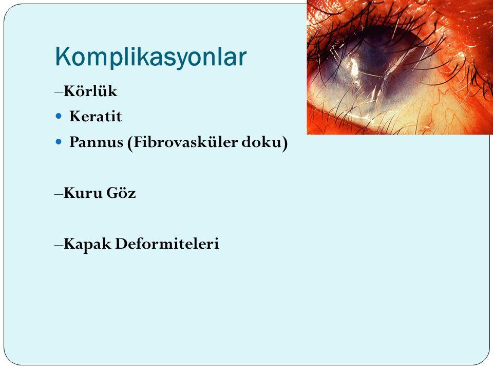 Komplikasyonlar –Körlük Keratit Pannus (Fibrovasküler doku) –Kuru Göz