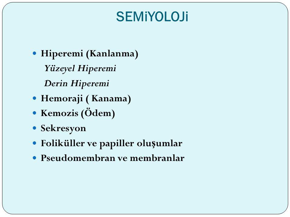 SEMiYOLOJi Hiperemi (Kanlanma) Yüzeyel Hiperemi Derin Hiperemi