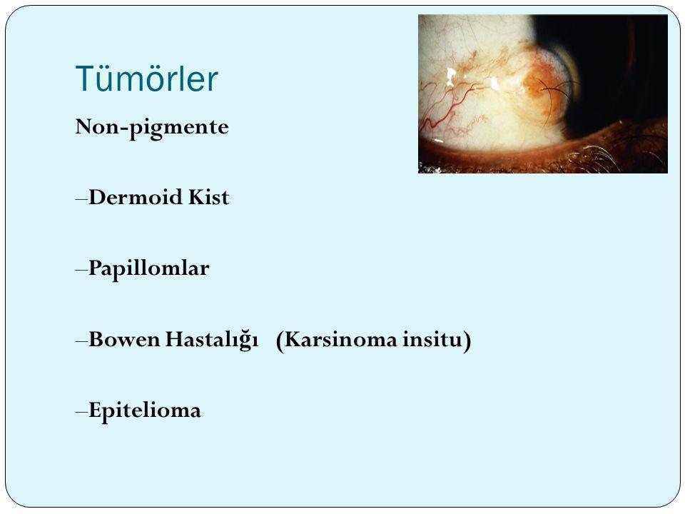 Tümörler Non-pigmente –Dermoid Kist –Papillomlar