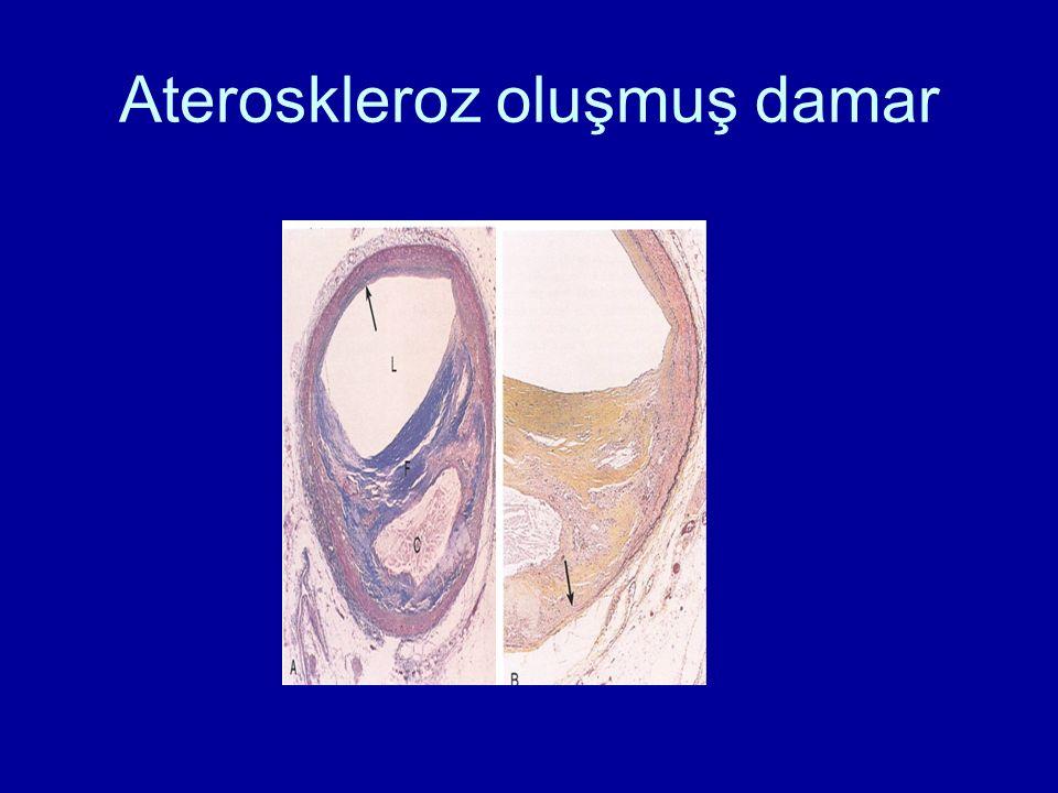 Ateroskleroz oluşmuş damar