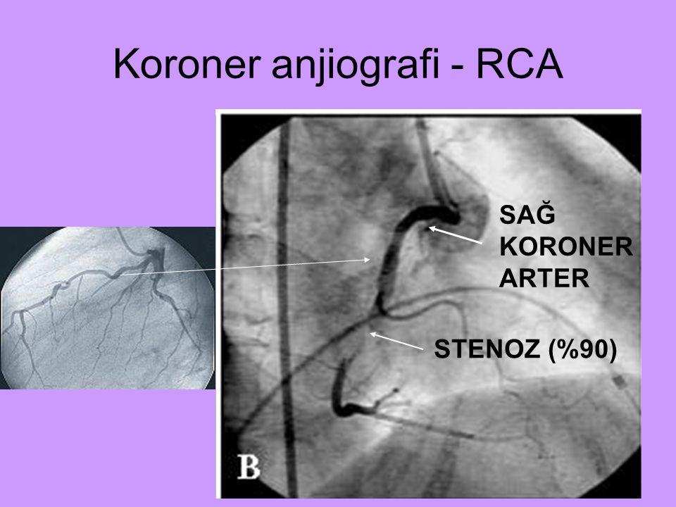 Koroner anjiografi - RCA