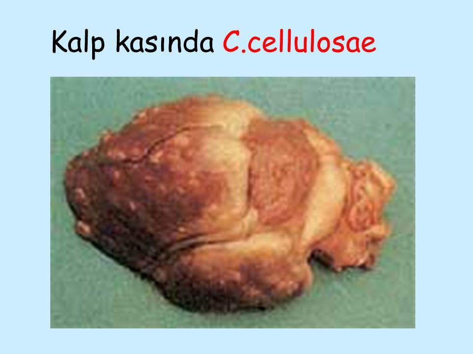 Kalp kasında C.cellulosae