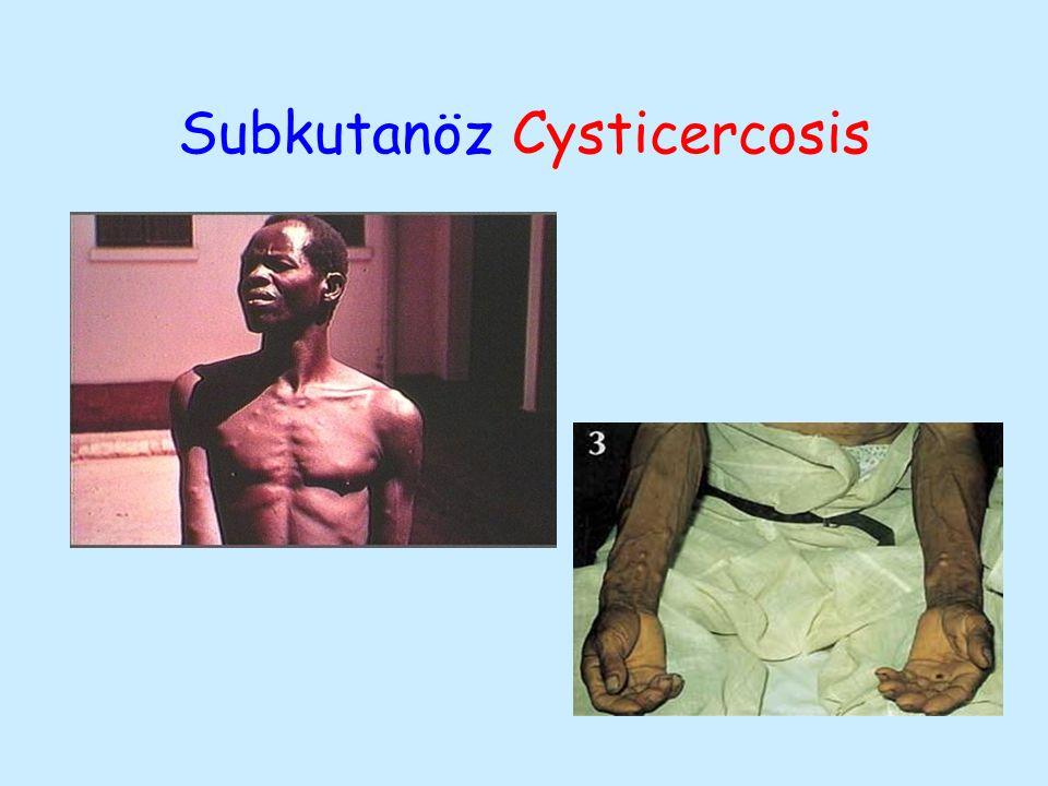 Subkutanöz Cysticercosis