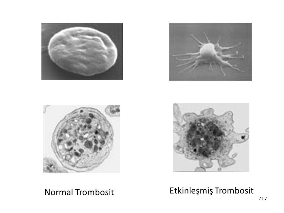 Normal Trombosit Etkinleşmiş Trombosit