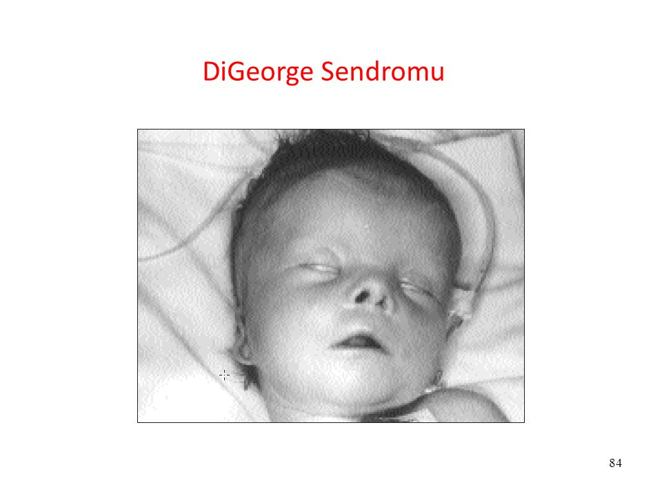 DiGeorge Sendromu