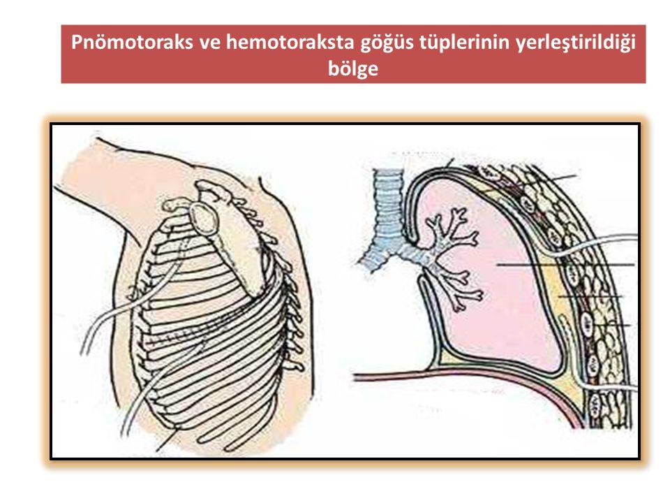 Pnömotoraks ve hemotoraksta göğüs tüplerinin yerleştirildiği bölge