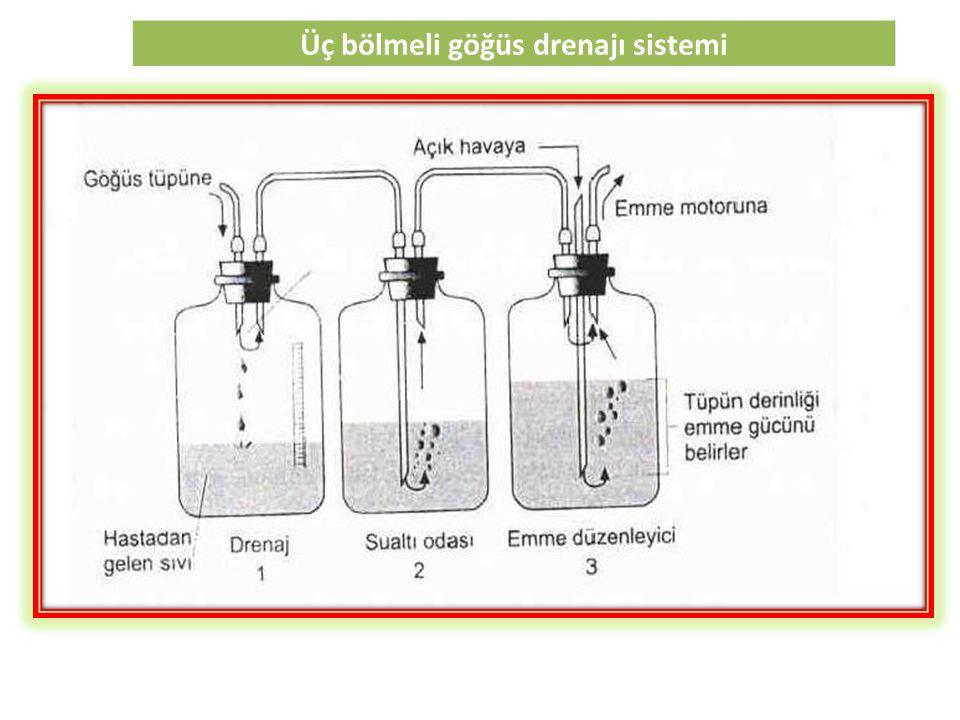 Üç bölmeli göğüs drenajı sistemi