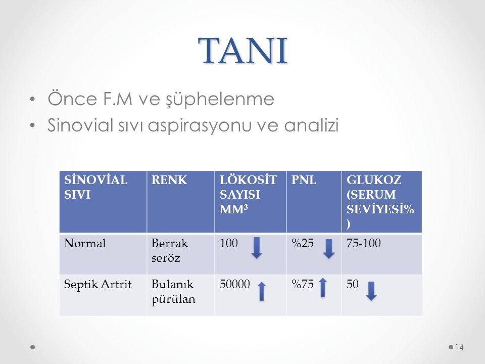 TANI Önce F.M ve şüphelenme Sinovial sıvı aspirasyonu ve analizi