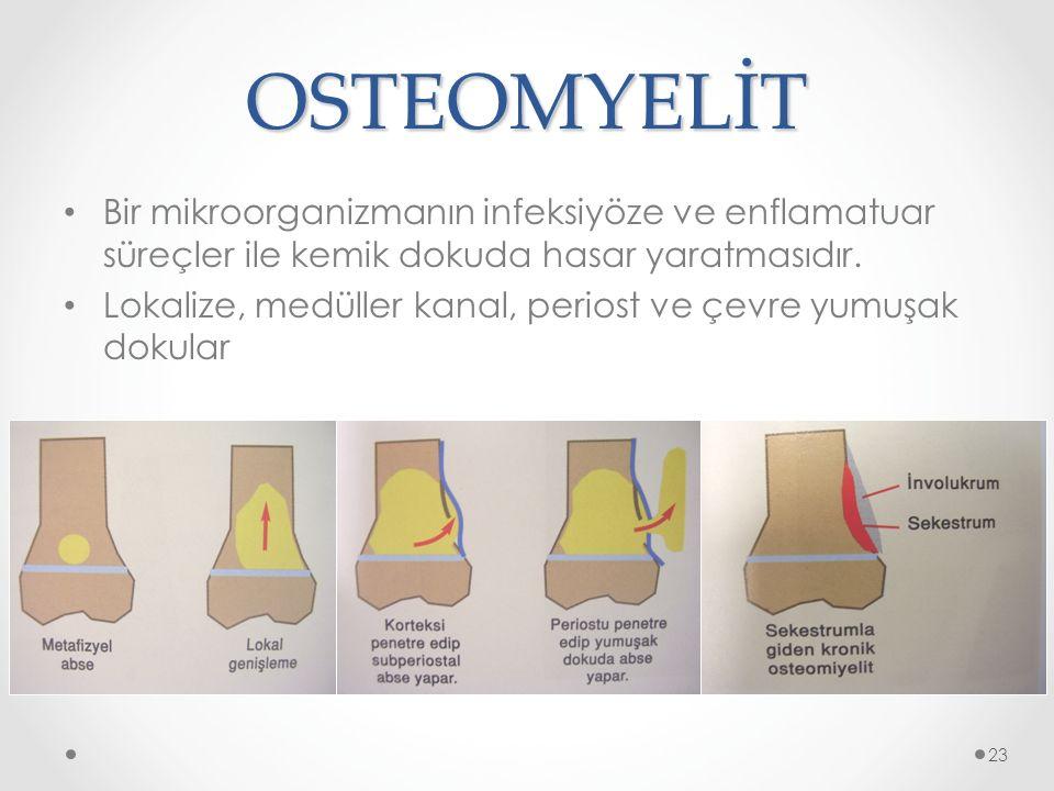 OSTEOMYELİT Bir mikroorganizmanın infeksiyöze ve enflamatuar süreçler ile kemik dokuda hasar yaratmasıdır.