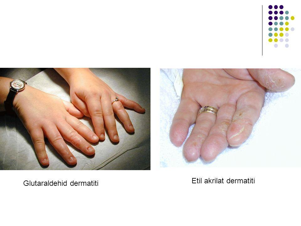 Etil akrilat dermatiti