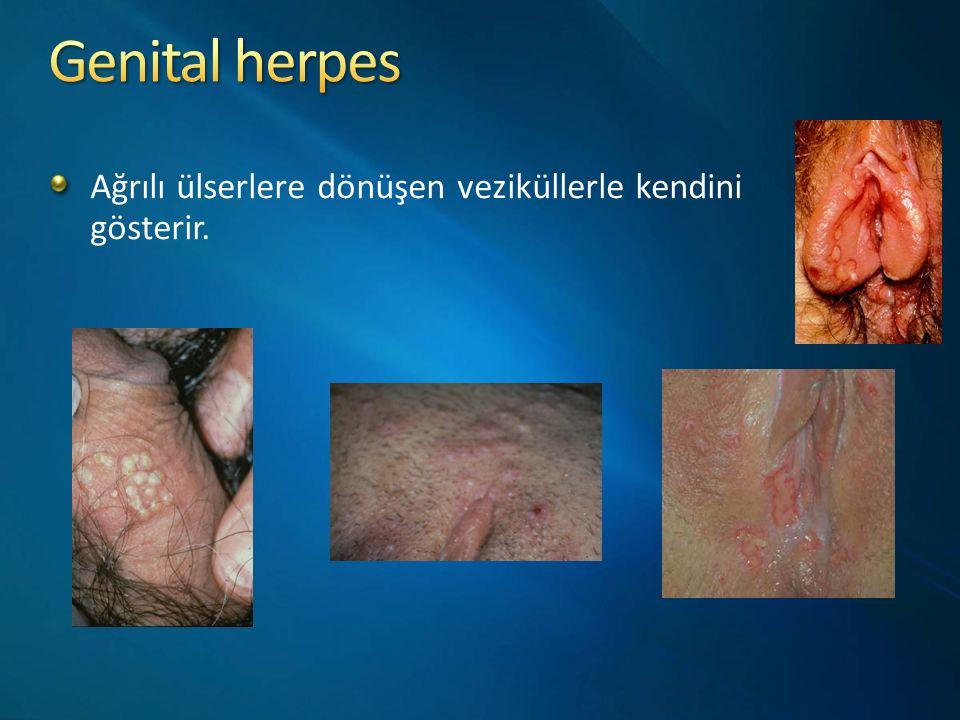 Genital herpes Ağrılı ülserlere dönüşen veziküllerle kendini gösterir.