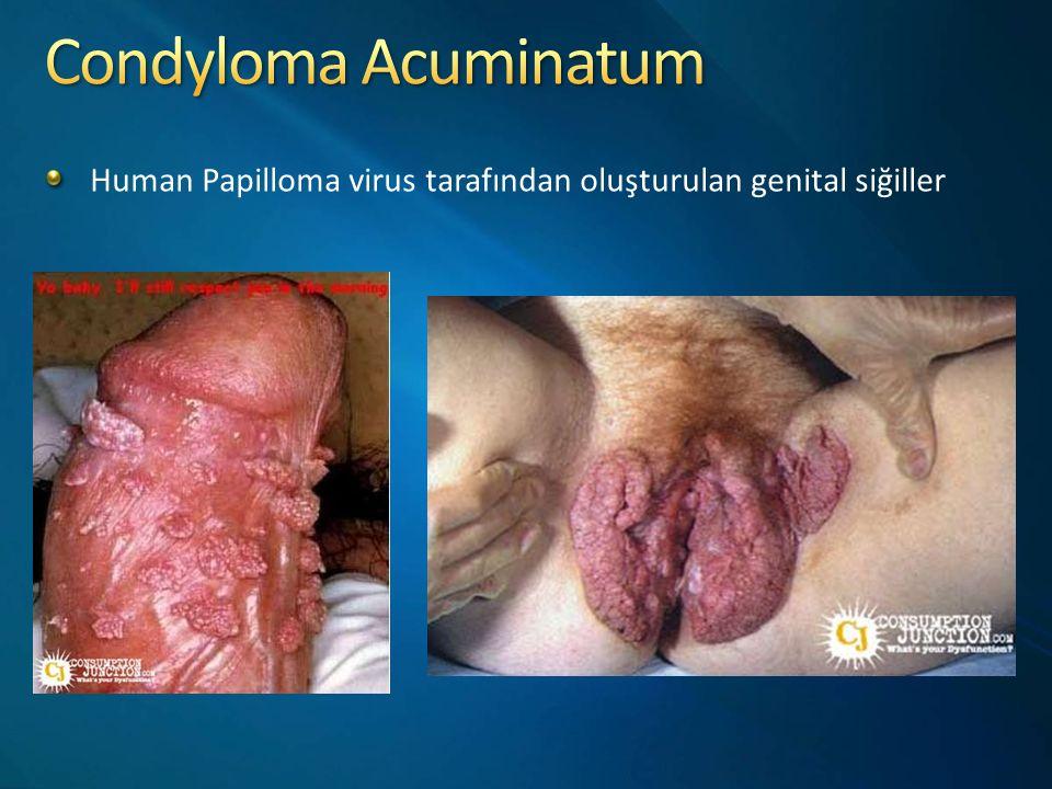 Condyloma Acuminatum Human Papilloma virus tarafından oluşturulan genital siğiller