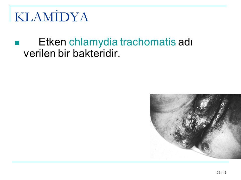 KLAMİDYA Etken chlamydia trachomatis adı verilen bir bakteridir.