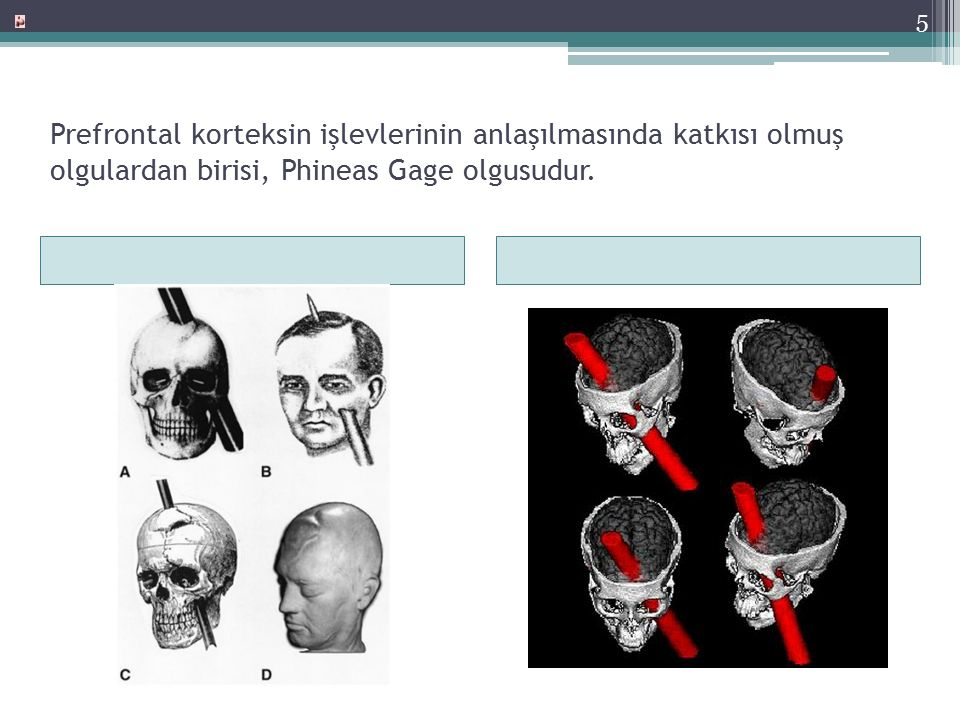 Prefrontal korteksin işlevlerinin anlaşılmasında katkısı olmuş olgulardan birisi, Phineas Gage olgusudur.