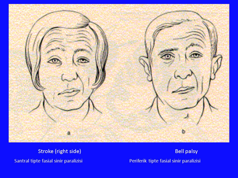 Stroke (right side) Bell palsy Santral tipte fasial sinir paralizisi