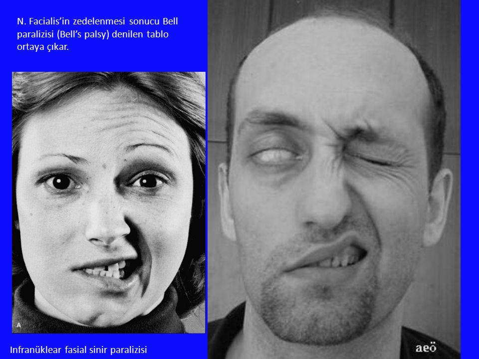 N. Facialis'in zedelenmesi sonucu Bell paralizisi (Bell's palsy) denilen tablo ortaya çıkar.