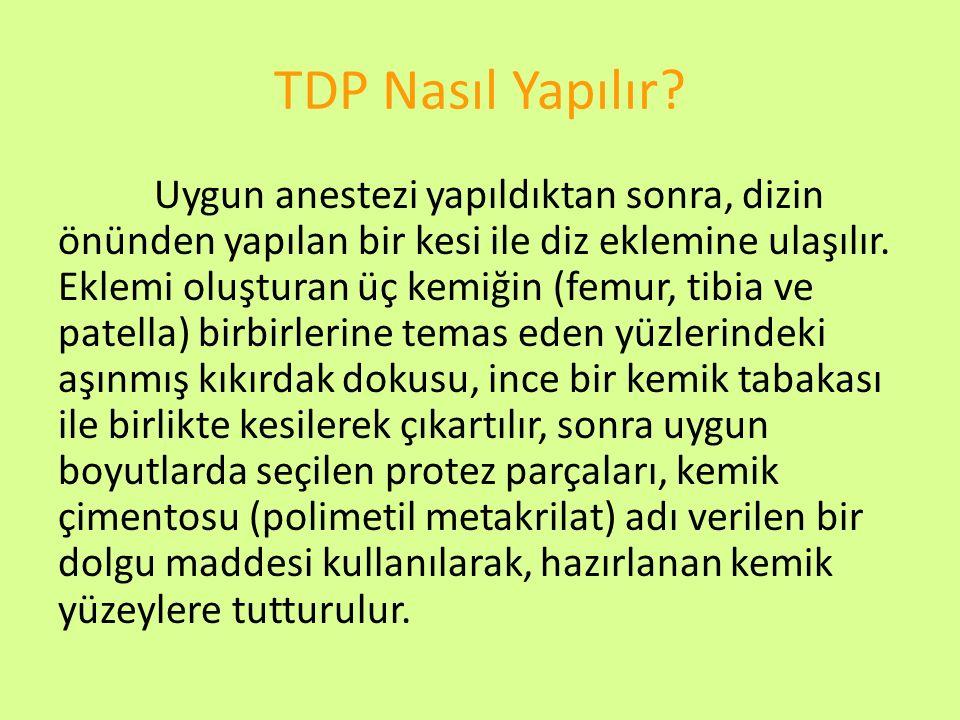 TDP Nasıl Yapılır