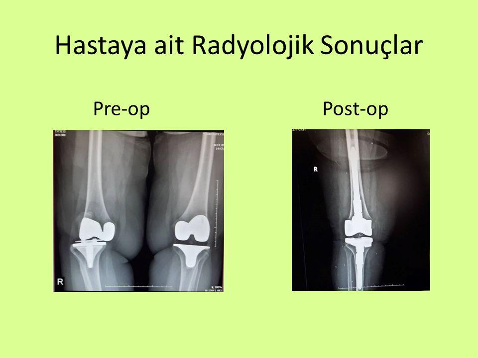 Hastaya ait Radyolojik Sonuçlar
