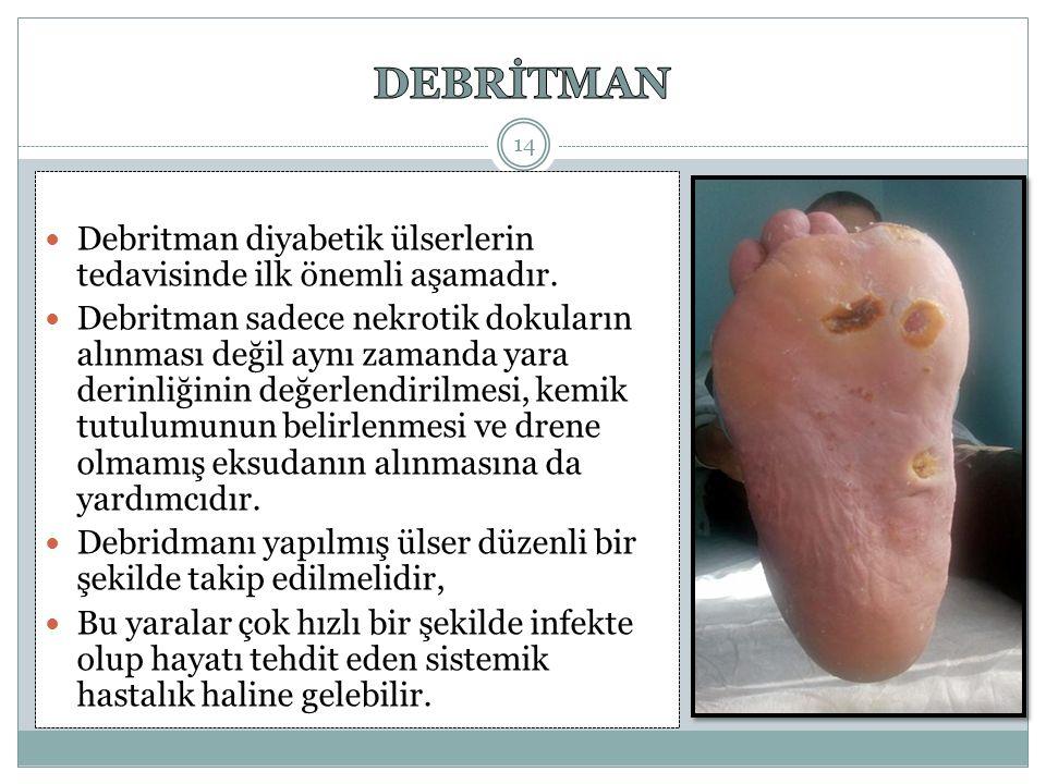 DEBRİTMAN Debritman diyabetik ülserlerin tedavisinde ilk önemli aşamadır.