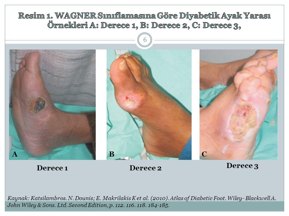 Resim 1. WAGNER Sınıflamasına Göre Diyabetik Ayak Yarası Örnekleri A: Derece 1, B: Derece 2, C: Derece 3,