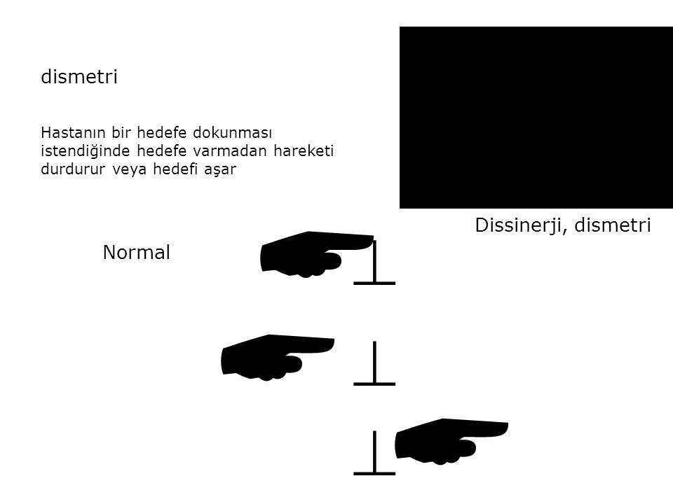       dismetri Dissinerji, dismetri Normal