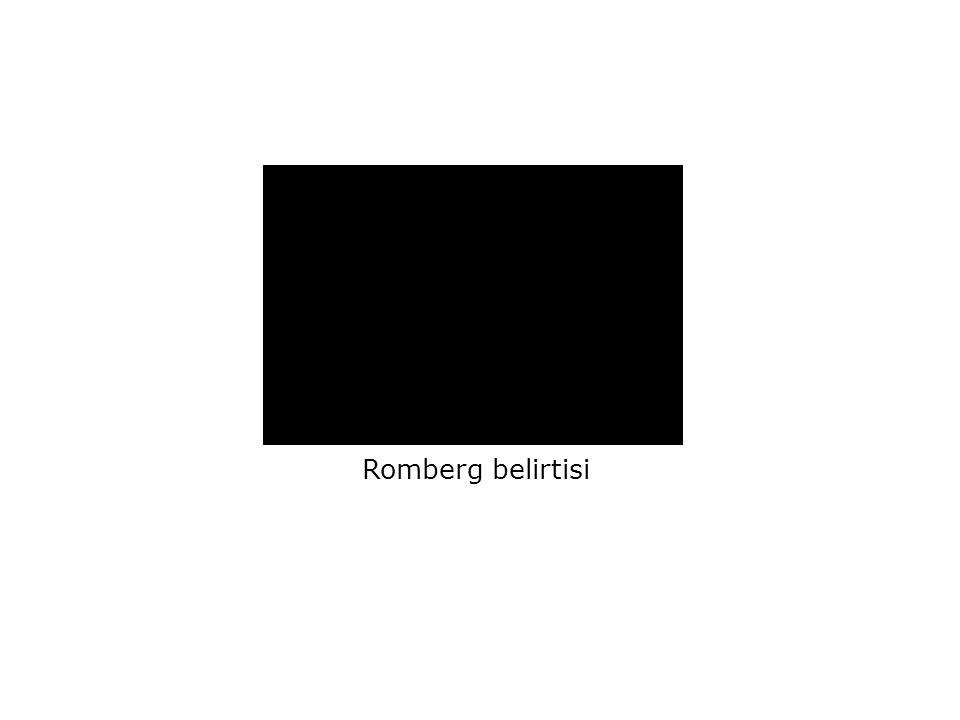 Romberg belirtisi