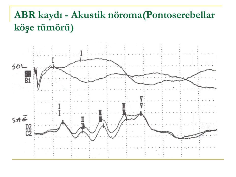 ABR kaydı - Akustik nöroma(Pontoserebellar köşe tümörü)