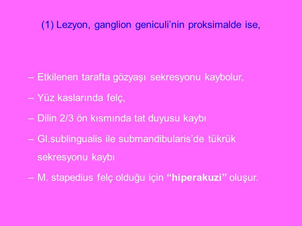 (1) Lezyon, ganglion geniculi'nin proksimalde ise,