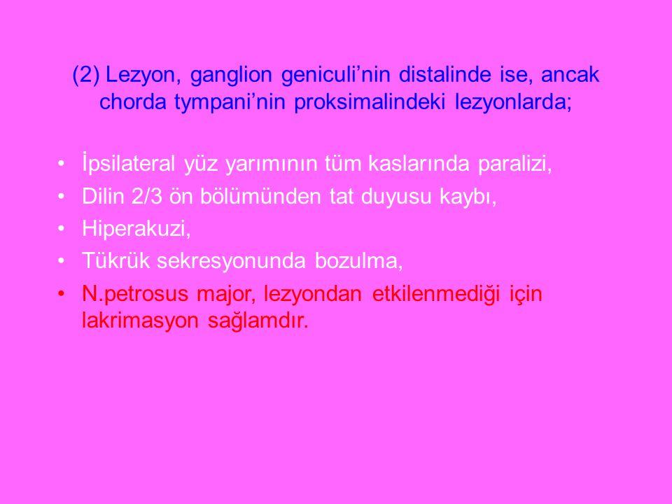 (2) Lezyon, ganglion geniculi'nin distalinde ise, ancak chorda tympani'nin proksimalindeki lezyonlarda;