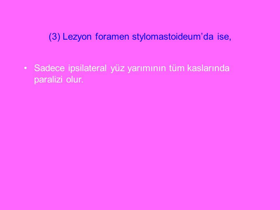 (3) Lezyon foramen stylomastoideum'da ise,
