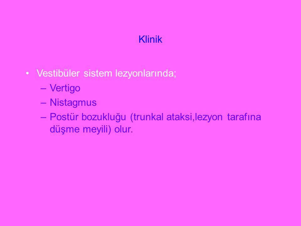 Klinik Vestibüler sistem lezyonlarında; Vertigo. Nistagmus.
