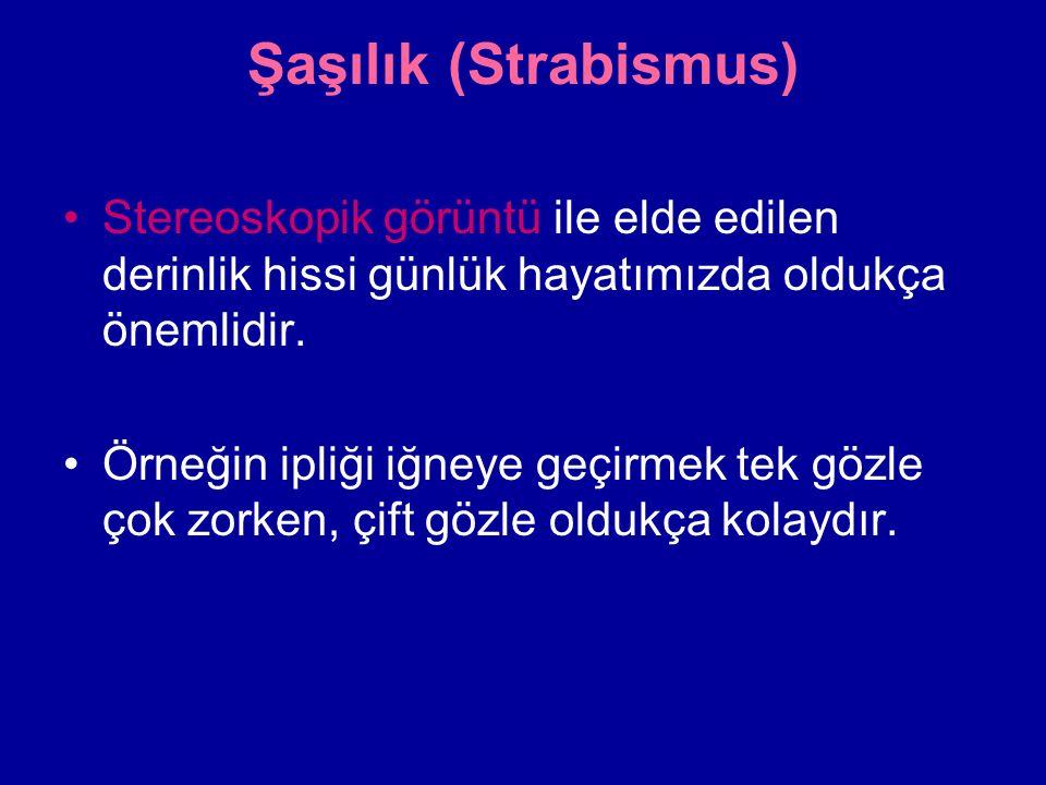 Şaşılık (Strabismus) Stereoskopik görüntü ile elde edilen derinlik hissi günlük hayatımızda oldukça önemlidir.