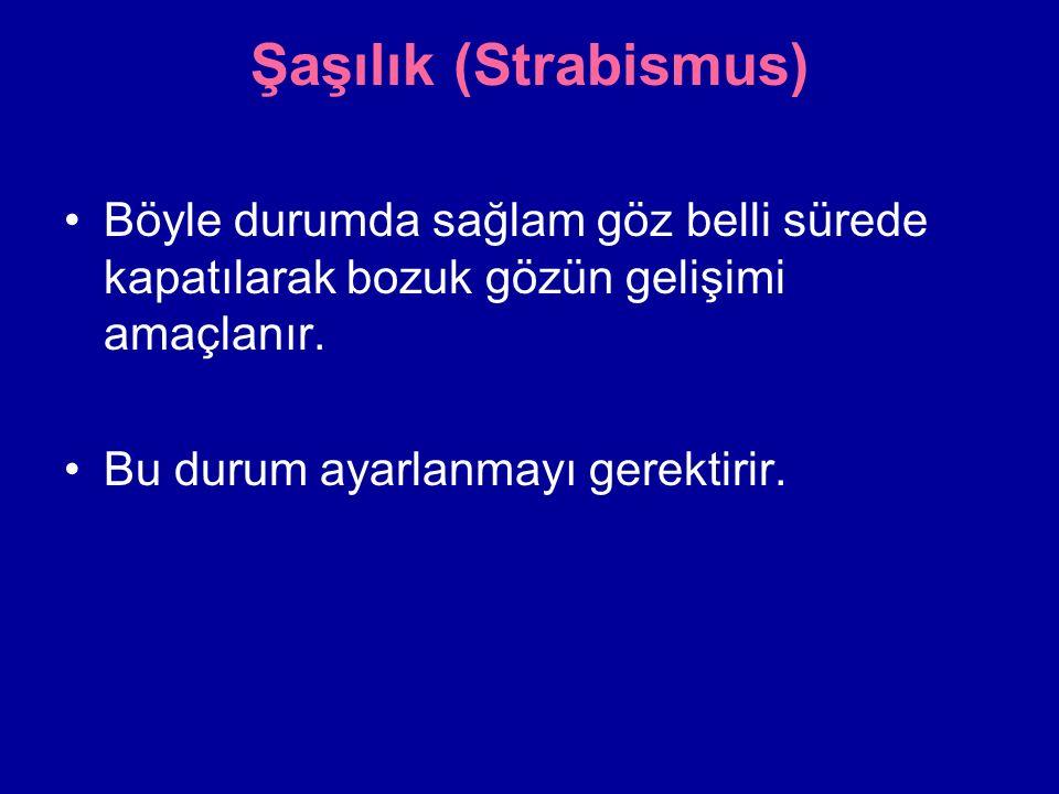 Şaşılık (Strabismus) Böyle durumda sağlam göz belli sürede kapatılarak bozuk gözün gelişimi amaçlanır.