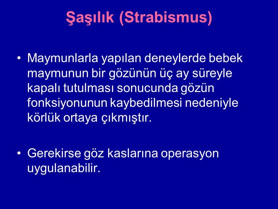 Şaşılık (Strabismus)