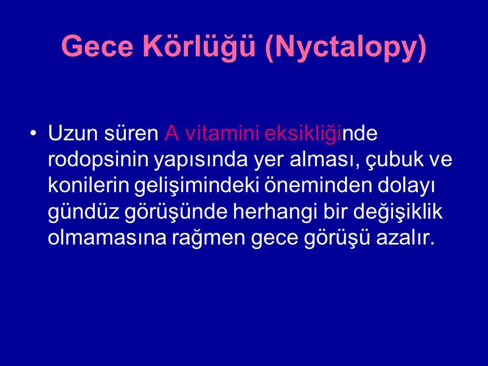 Gece Körlüğü (Nyctalopy)