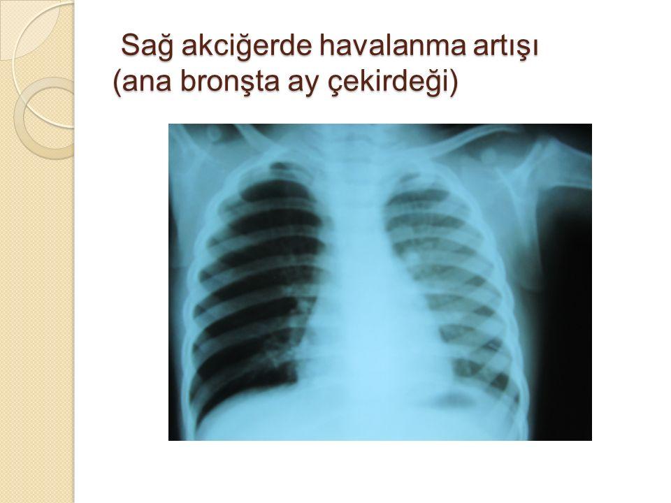 Sağ akciğerde havalanma artışı (ana bronşta ay çekirdeği)