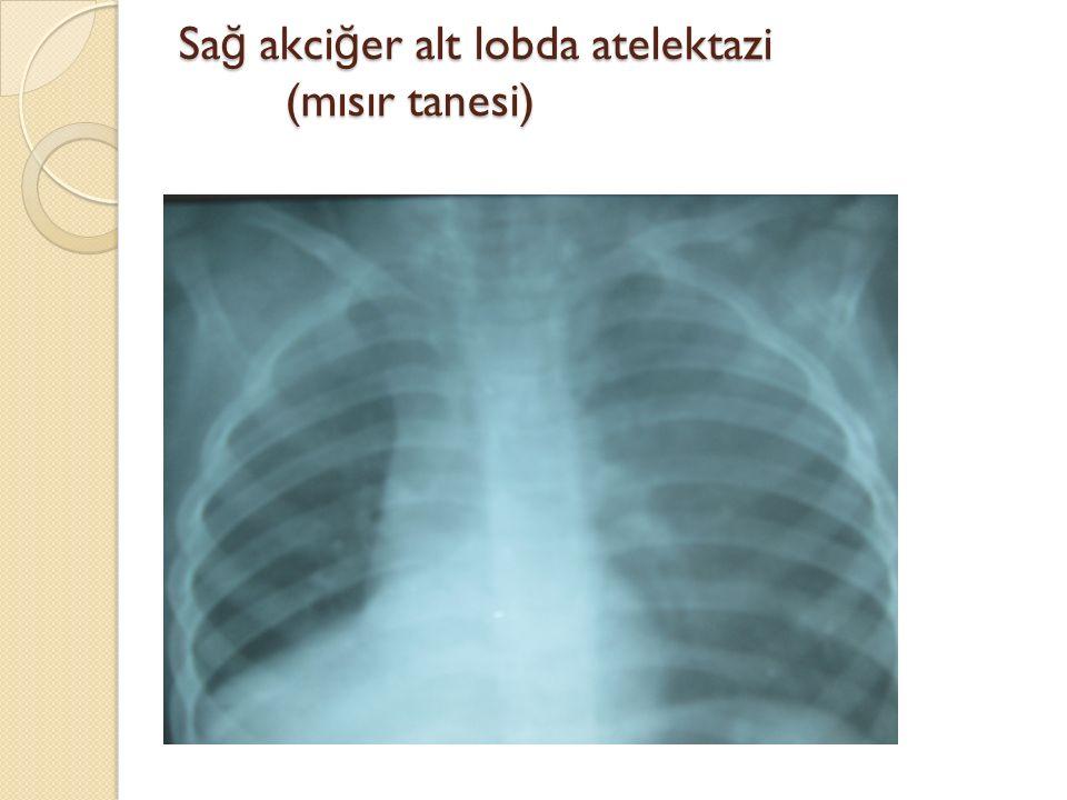 Sağ akciğer alt lobda atelektazi (mısır tanesi)