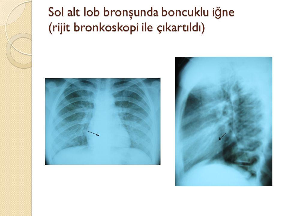 Sol alt lob bronşunda boncuklu iğne (rijit bronkoskopi ile çıkartıldı)