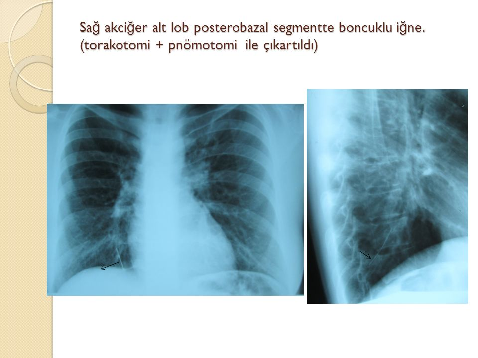 Sağ akciğer alt lob posterobazal segmentte boncuklu iğne