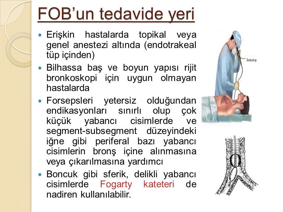 FOB'un tedavide yeri Erişkin hastalarda topikal veya genel anestezi altında (endotrakeal tüp içinden)