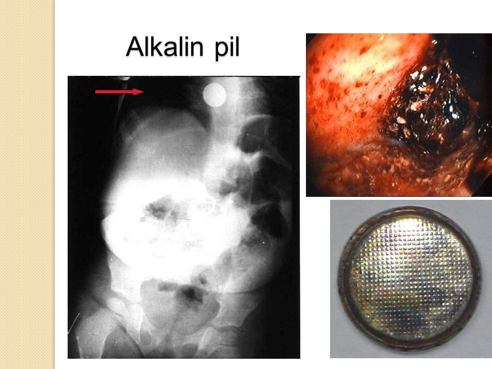 Alkalin pil 61